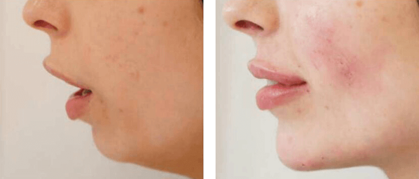Chin Augmentation and Jaw Definition