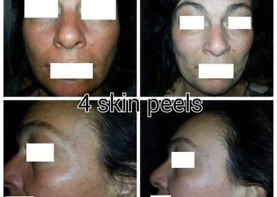 Skin Peels