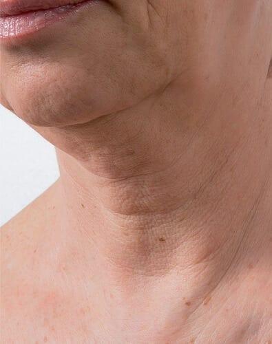 Skin Rejuvenating Injections