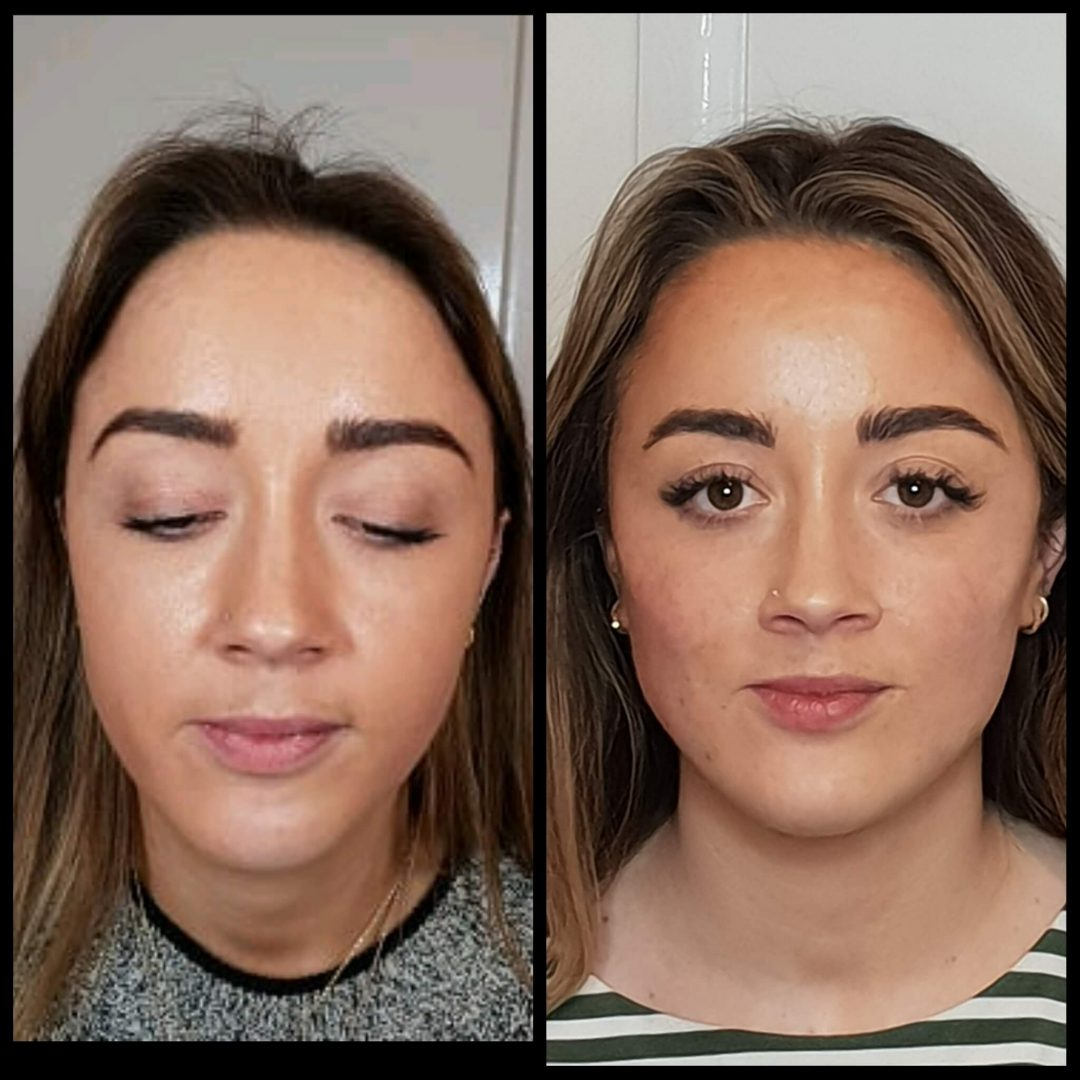 Chin and Jaw Definition Augmentation | Non-surgical dermal