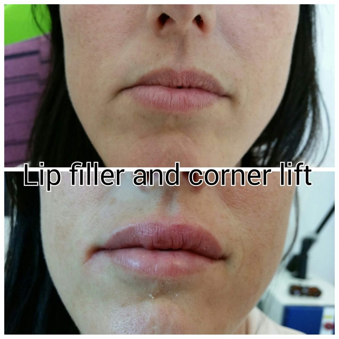 Treatments gallery cheltenham forever clinic cheltenham for Lip tattoo fade